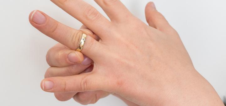 pierścionek na opuchniętym palcu